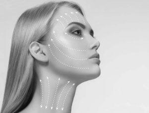 Rejuvenare facială - lifting