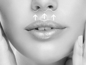Chirurgie plastică - lifting buze