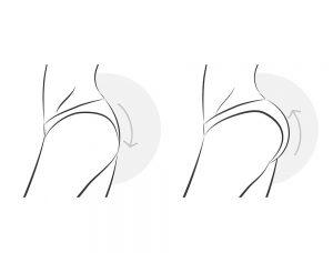 Ridicare fese - chirurgie plastică
