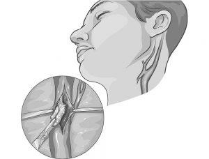 endarterectomie carotidiana