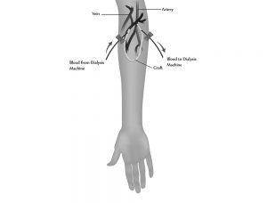 Acces vascular hemodializă