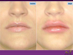 Chirurgie plastică buze