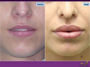 Chirurgie plastică mărire buze