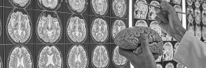 Neurochhirurgie Timișoara