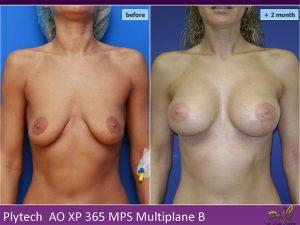 lifting sâni fără cicatrici