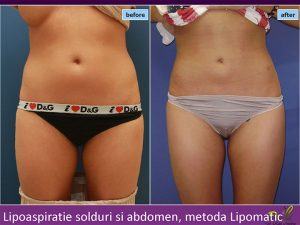 Lipoaspirație șolduri și abdomen Timișoara