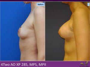 Implant mamar Dr. Chioibaș