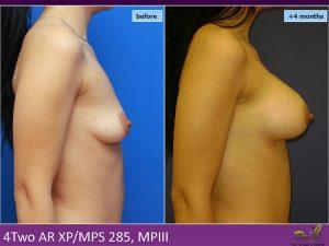 Chirurgie plastică mărire sâni