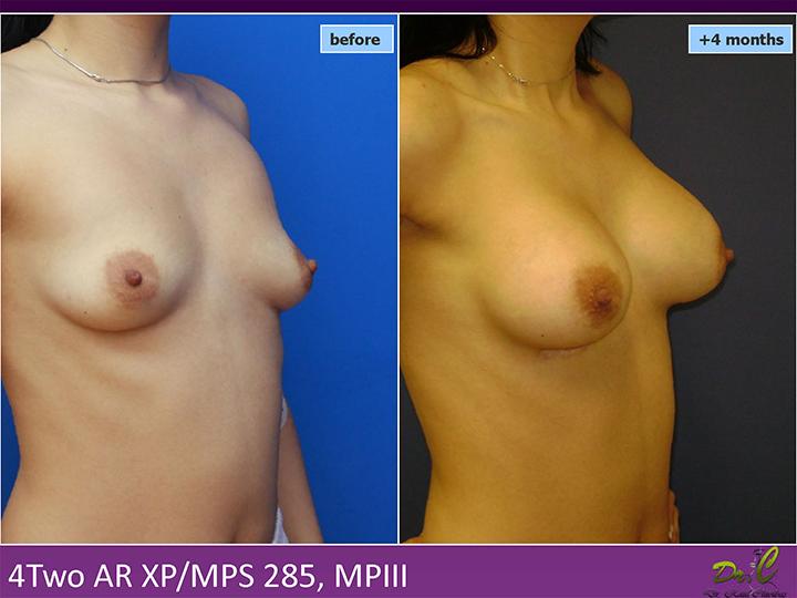 Chirurgie plastică sâni