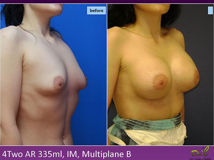 Mărire sâni