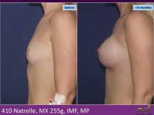 Mărire sâni - CBS Medcom Hospital