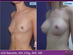 Mărire sâni Medcom