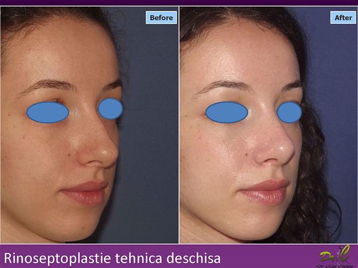 Chirurgie plastică nas