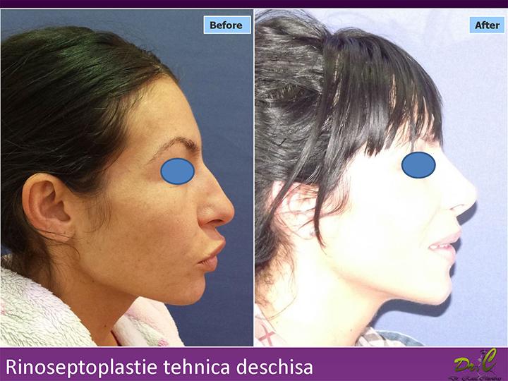 Rinoplastie - operație nas