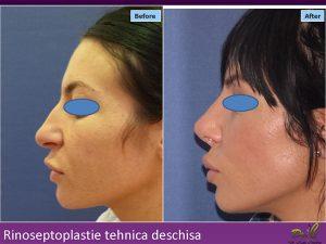Operație la nas