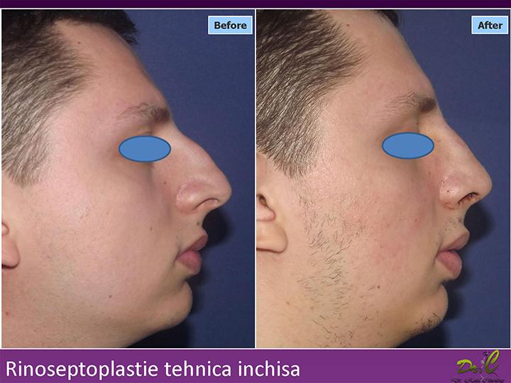 Rinoplastie Medcom