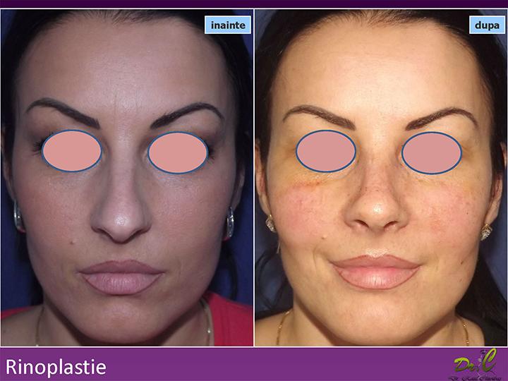 Chirurgie plastică nas - Rinoplastie