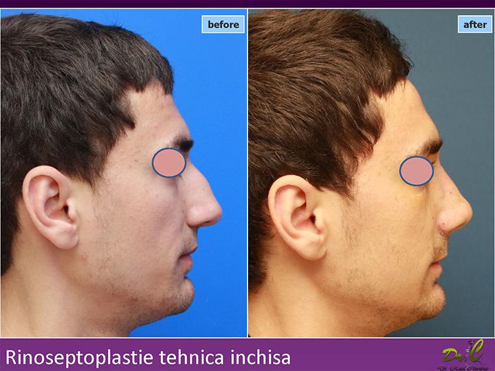 Clinică chirurgie plastică - Rinoplastie