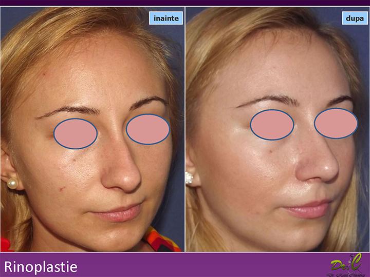 Operație estetică - Rinoplastie