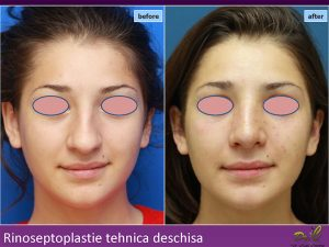 Rinoplastie before/after