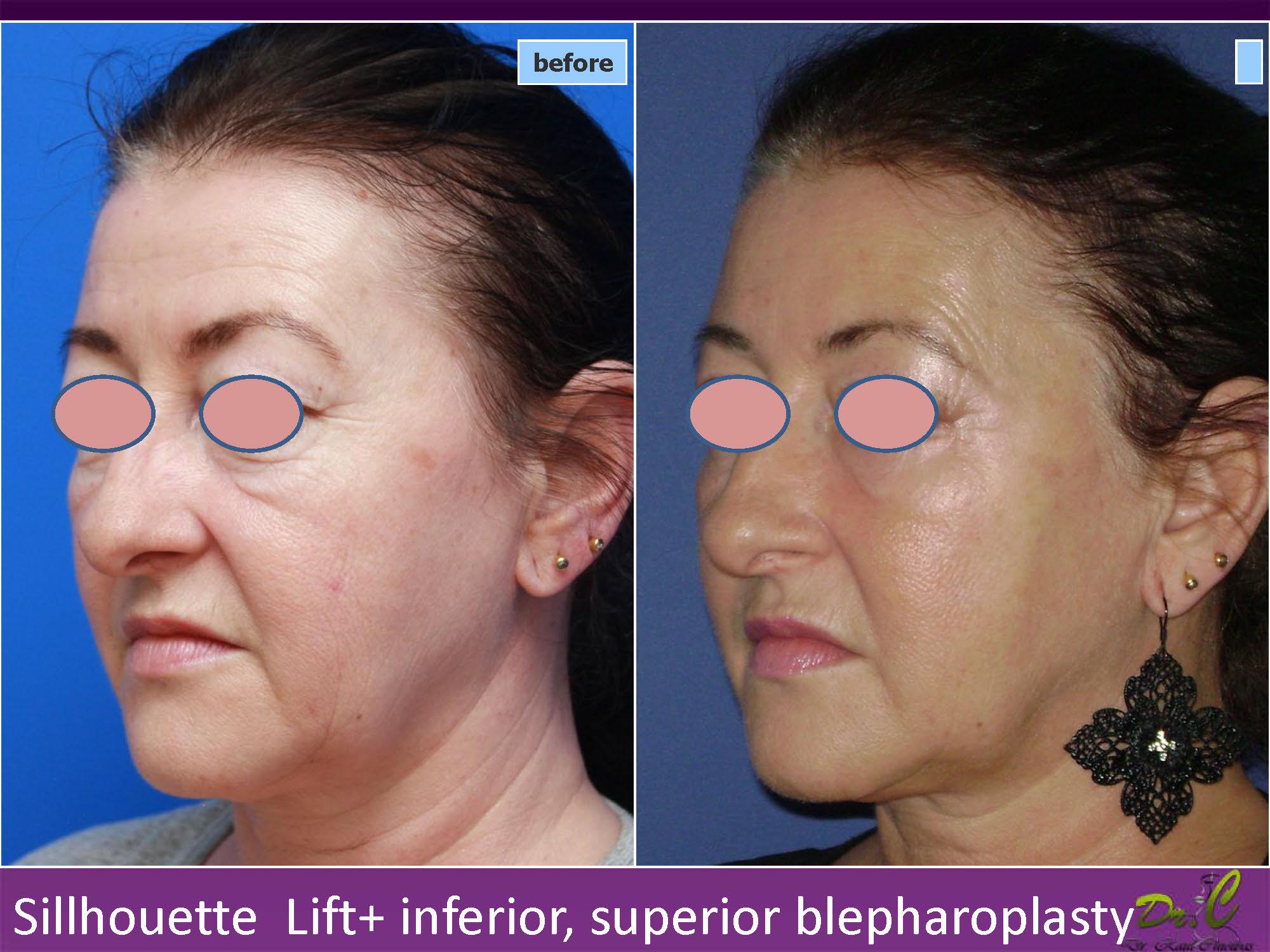 Silhouette lift - rejuvenare facială
