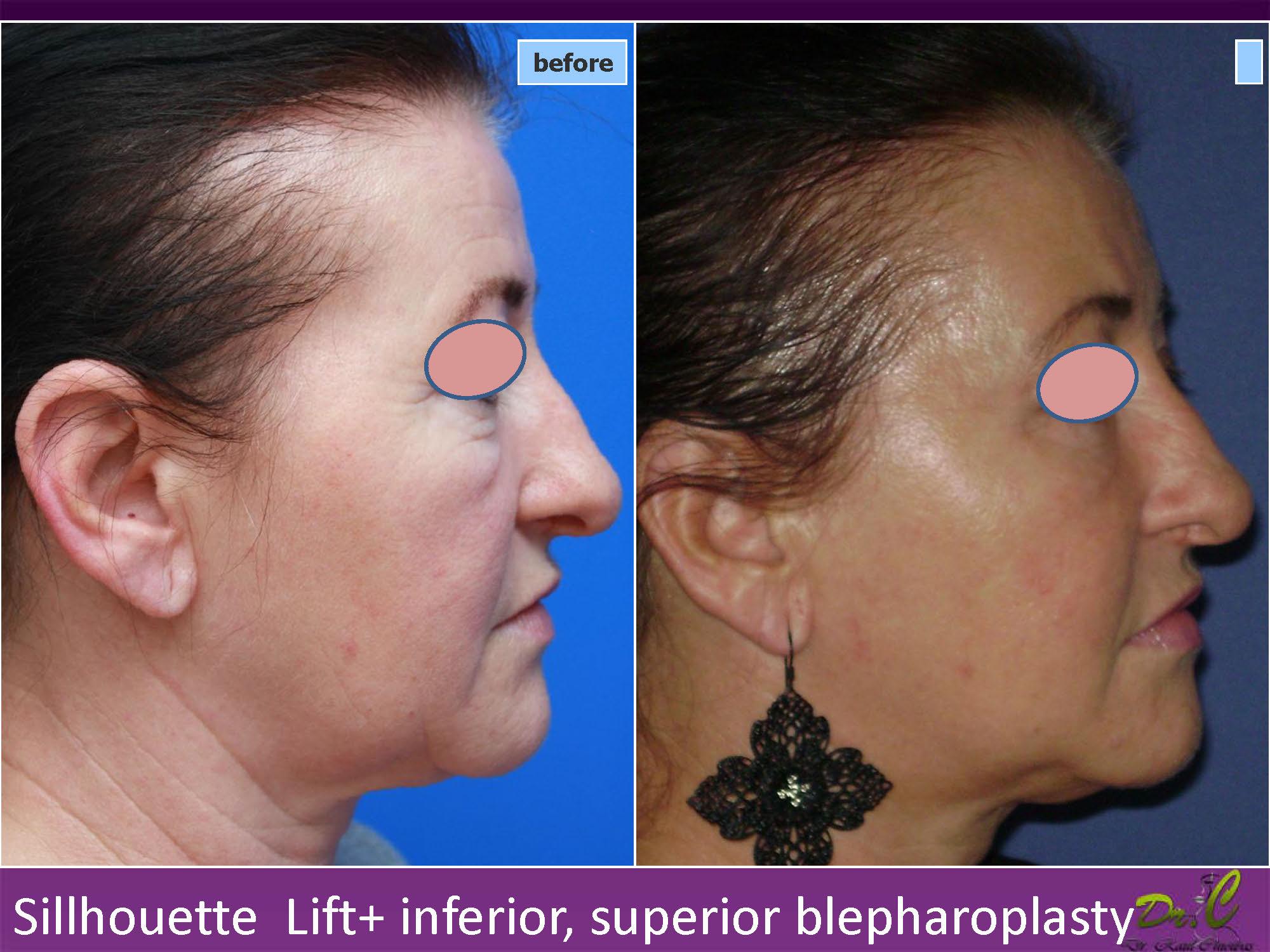 Silhouette lift - întindere piele
