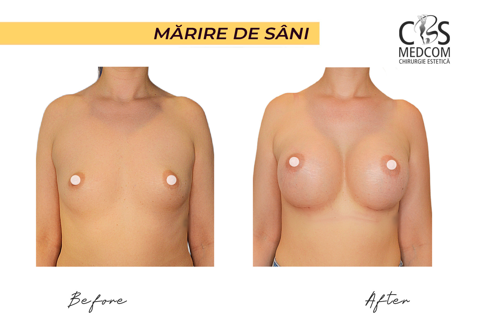 chirurgie estetică sâni timișoara