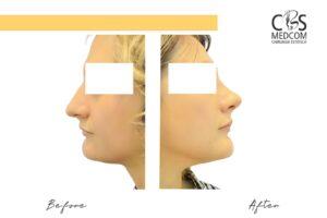 Chirurgie estetică nas