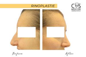 Rinoplastie