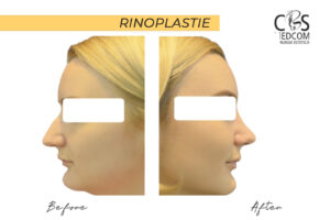operație rinoplastie