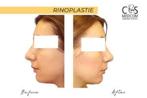 operație estetică nas timișoara